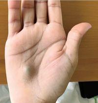 Benjolan muncul di tangan pria, diagnosis dokter adalah infeksi jantung.