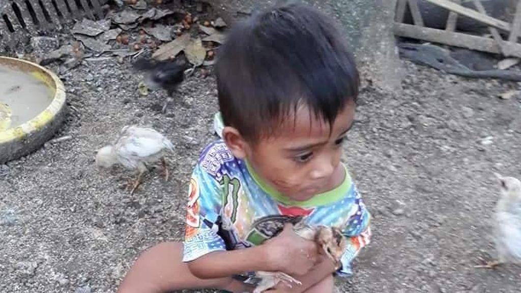 Potret Kemiskinan NTB, Bocah Ini Alami Bengkok Tulang Paha