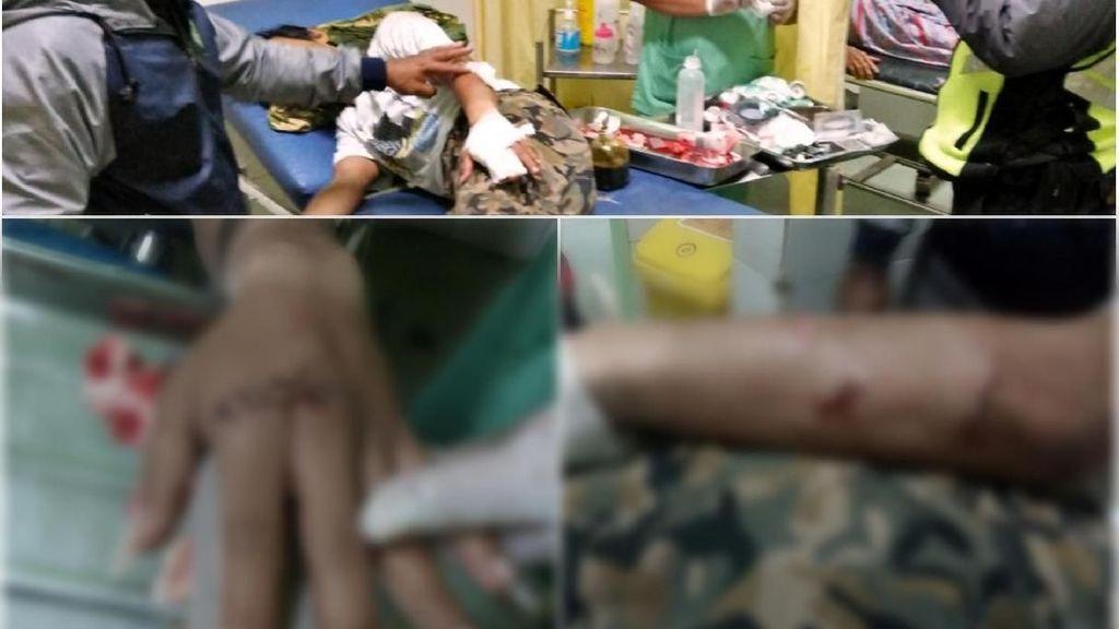 Diserang Pemuda Mabuk di Sukabumi, Jari Yatna Nyaris Putus