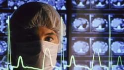 Tentang Cuci Otak, Terapi Kontroversial yang Dipopulerkan dr Terawan
