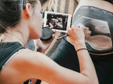 Untuk paket belly painting dasar termasuk dengan gambar foto USG kayak gini, sesi foto dan hasil 5 foto dikenakan biaya sekitar Rp 4,1 juta. (Foto: Facebook/ Beautiful Bumps Wanaka)