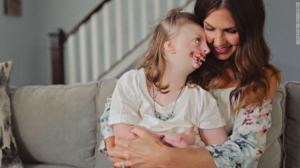Tega! Foto Anak Difabel Disalahgunakan buat Kampanye Aborsi Ilegal