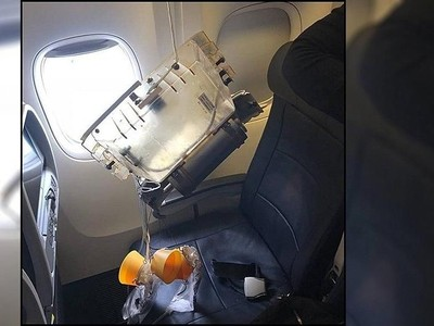 Kasihan, Bocah Ini Kejatuhan Tabung Oksigen Saat Pesawat Mendarat