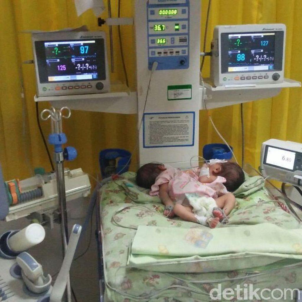 Kasus Bayi Kembar Siam di Jawa Timur Tertinggi Nasional