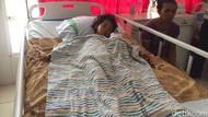Cerita Alda, Bocah Terbakar yang Tak Bisa Berobat Karena Biaya
