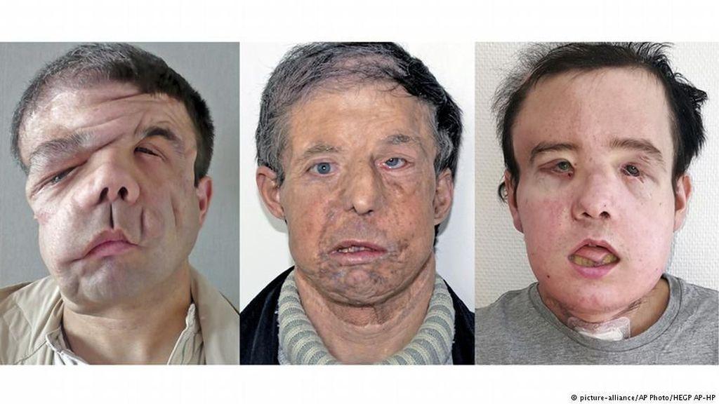 Akibat Penyakitnya, Pria Prancis Ini Punya Tiga Wajah Berbeda