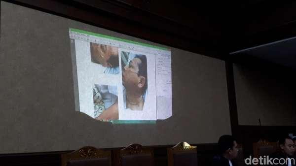 Jaksa KPK Tampilkan Visum Luka Setya Novanto di Sidang