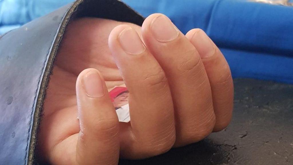 Cuitan Dokter Soal Pasien ABG yang Genggam Foto Pacar Saat Operasi