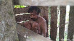 Cerita di Balik Pemasungan Marmun hingga 20 Tahun