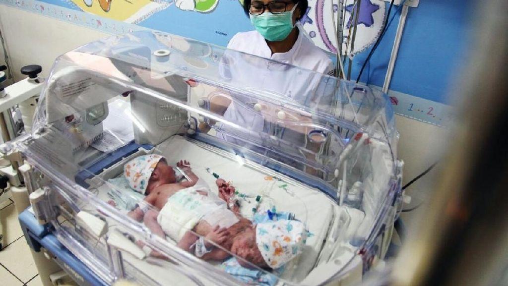 RSHS Rawat Bayi Kembar Siam Berkaki Tiga
