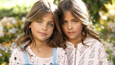 Sama-sama Manis, Jangan Tertukar Panggil Anak Kembar Ini Ya, Bun