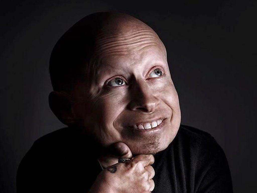 Verne Troyer Meninggal Dunia