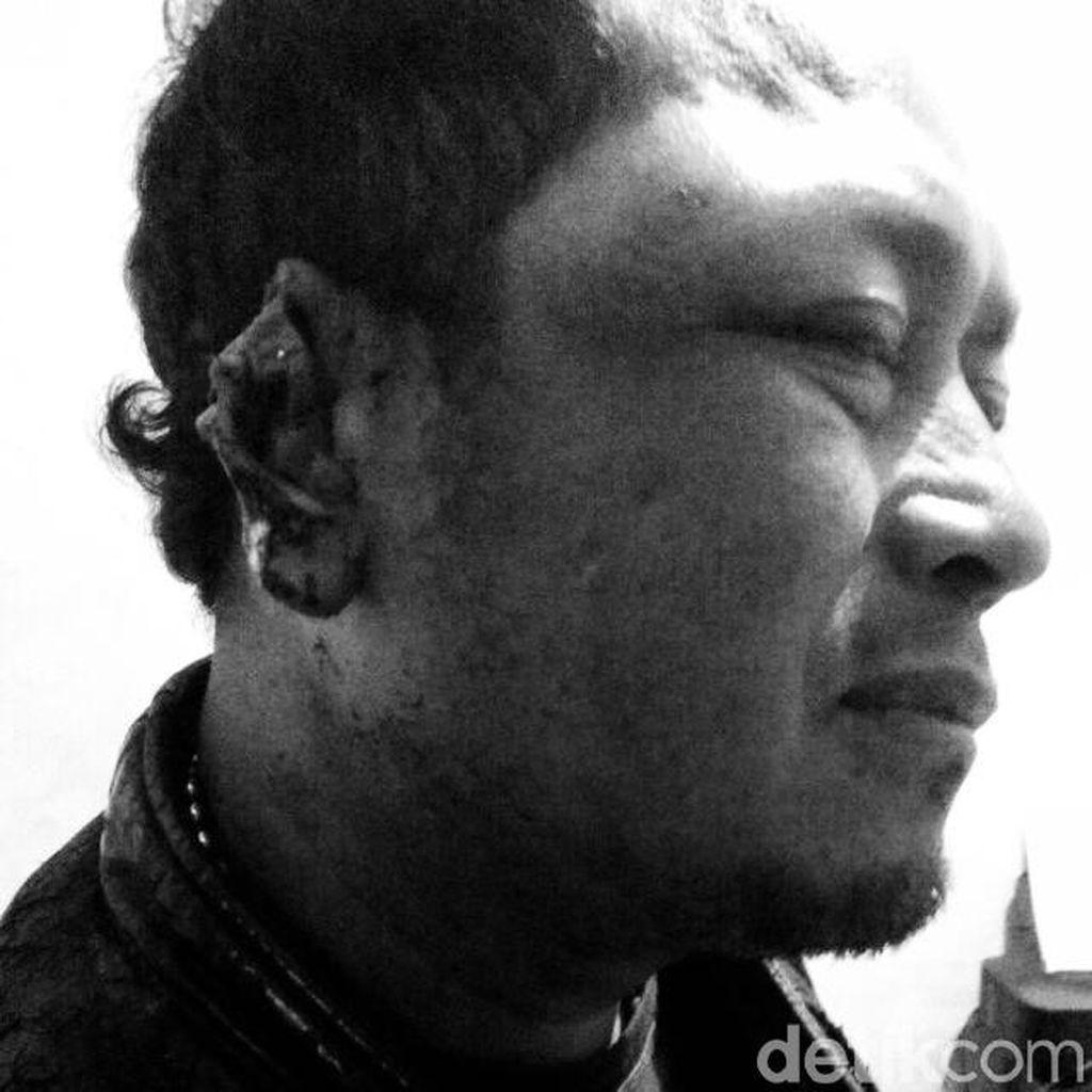 Dadang Tyson Gigit Telinga Teman hingga Putus Karena Rp 50 Ribu