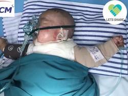 Bantu Dilan Yuk! Bayi 4 Bulan Ini Luka Bakar 45 Persen Tersiram Santan Panas