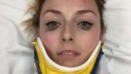 Wajah Memar Habis Kecelakaan Mobil, Wanita Ini Malah Pamer Eyeliner