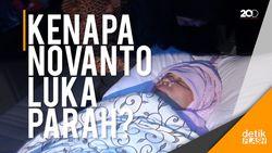 Bagaimana Bisa Novanto Luka Parah tapi Sopirnya Tidak?
