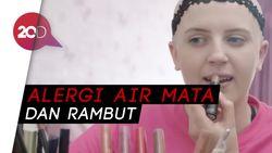 Wanita Ini Alergi Air Mata dan Rambutnya Sendiri