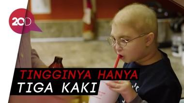 Bocah 7 Tahun Alami Kondisi Dwarfism yang Langka