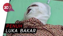 Kondisi Korban Ledakan Sumur Minyak Aceh