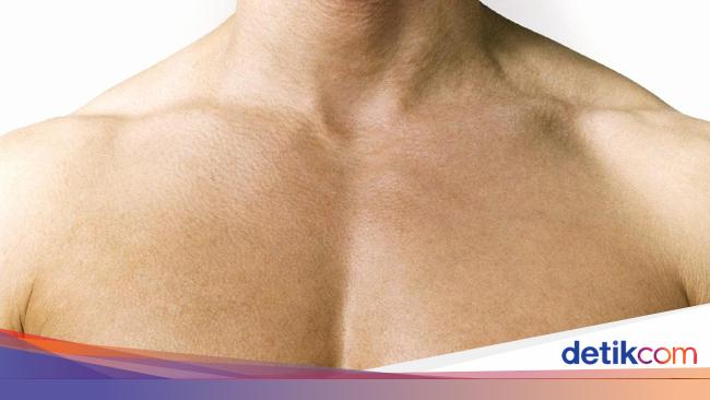 Waspada Kenali 4 Gejala Kanker Payudara Pada Pria