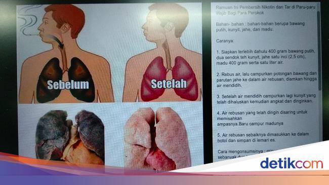 Viral Ramuan Pembersih Paru Paru Bagi Perokok Benar Bisa Nggak Sih