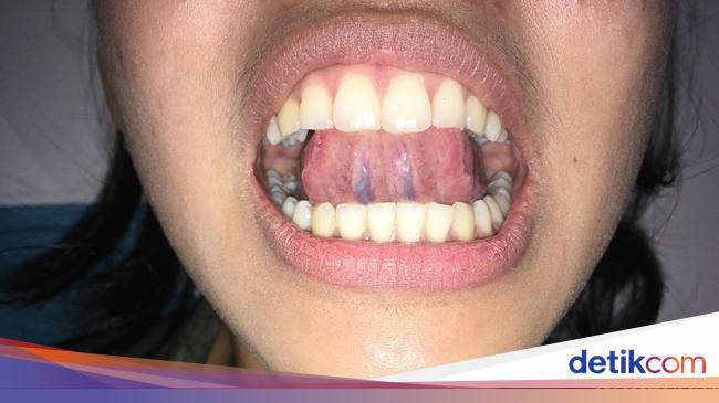 Deteksi Sariawan Biasa atau Kanker Mulut dengan Teknik ...