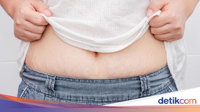 Kista Ovarium Sebesar 18 Kg Tumbuh di Perut Wanita Ini Sampai Sulit Napas