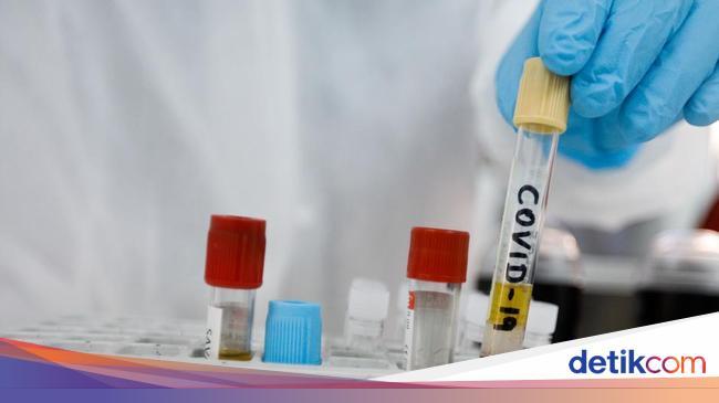 Daftar Riset Vaksin dan Obat Corona yang Hasilnya