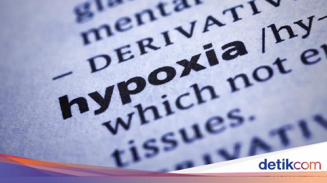 Dokter Paru Tegaskan Happy Hypoxia Jarang Terjadi