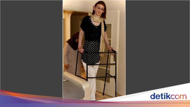 Menjulang 2,13 Meter, Inikah Wanita Terjangkung di Dunia?