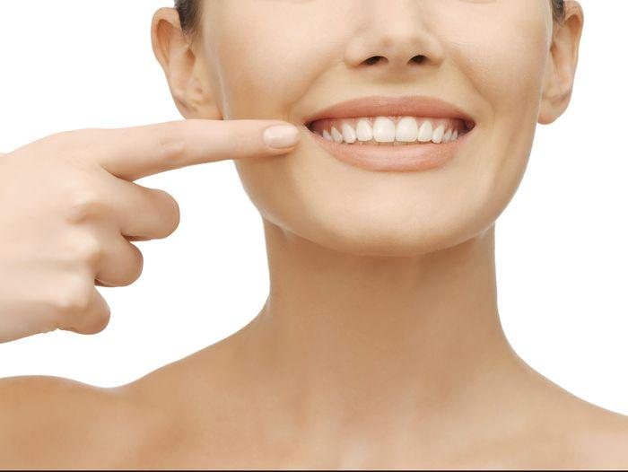 Hii Gigi Bisa Berwarna Kuning Kehijauan Karena Tertutup Karang Gigi
