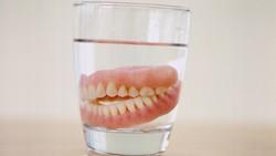 Jika Bisa Dilepas, Sekali Waktu Gigi Palsu Butuh Diistirahatkan