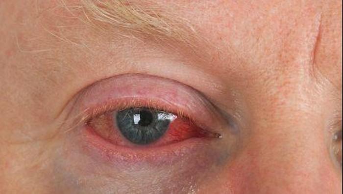 pria tua dengan mata merah