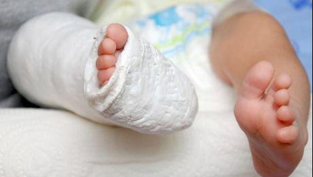 Haru, Bocah yang Lahir dengan Kedua Kaki Terbalik Kini Mampu Berjalan