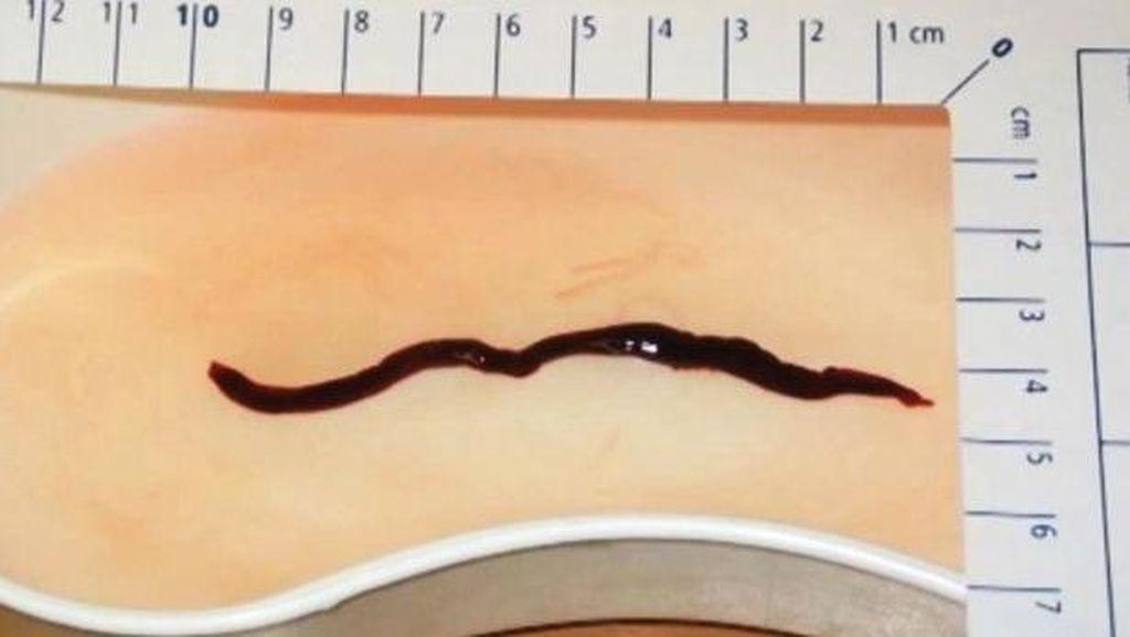 Hii! Sebulan Lamanya Cacing Hitam Besar Hidup di Hidung Bocah Ini
