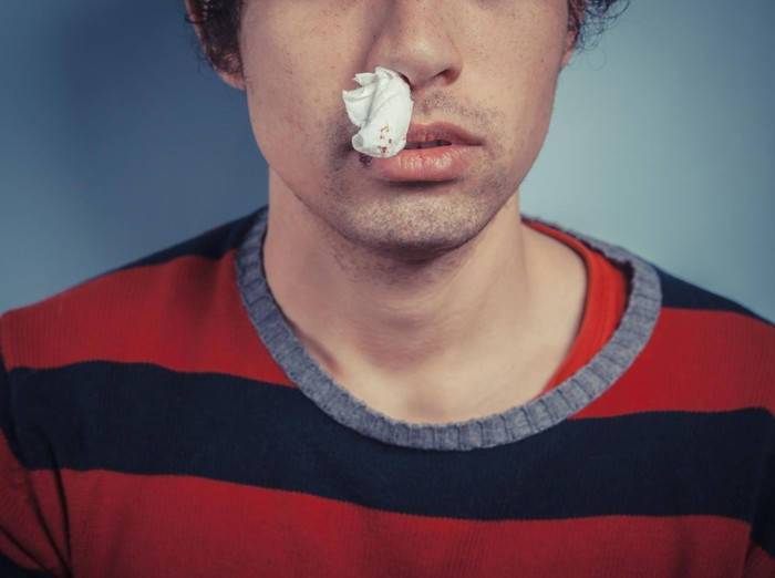 Di dalam membran hidung yang sensitif terdapat banyak pembuluh darah. (Foto: Thinkstock)