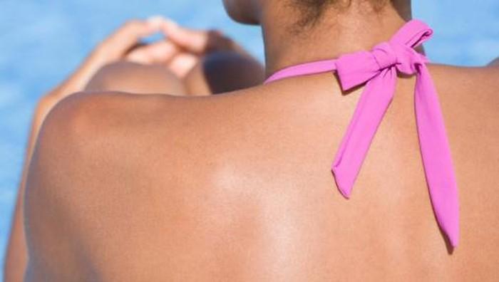 Kulit gelap juga berpotensi terkena kanker kulit. Foto ilustrasi: Thinkstock