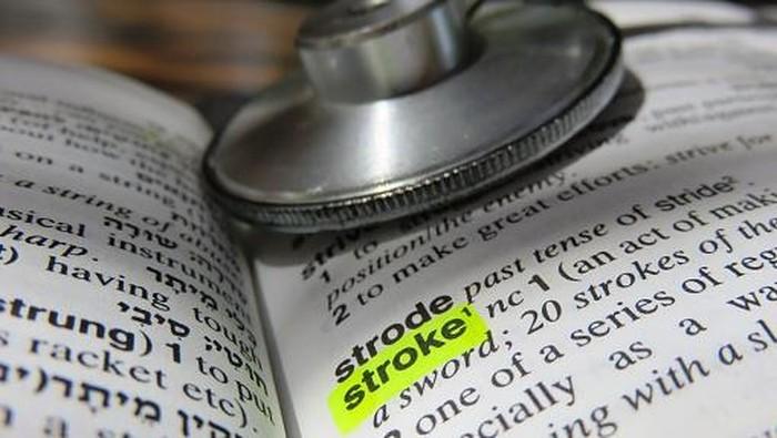Ilustrasi stroke. Foto: Thinkstock