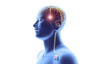 Kecerdasan Buatan Bisa Deteksi Alzheimer