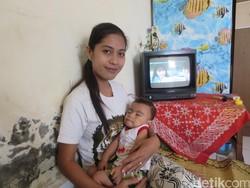 Kisah Rita, Ibu Muda di Bantul yang Merawat Anak dengan Sindrom Langka
