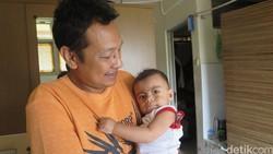 Anak Dipuji karena Alisnya Tebal, Padahal Gejala Sindrom Langka