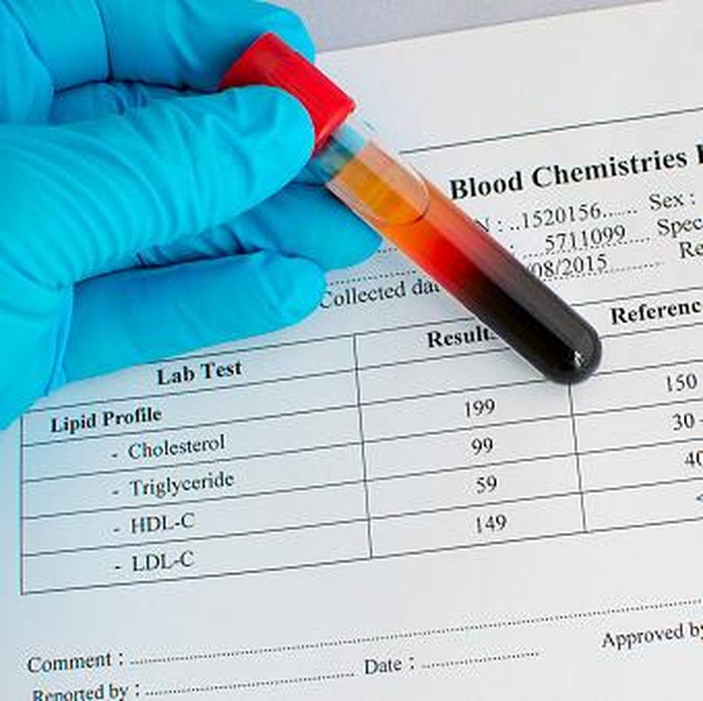 7 Tes Kesehatan yang Sebaiknya Dilakukan di Usia 73 Tahun