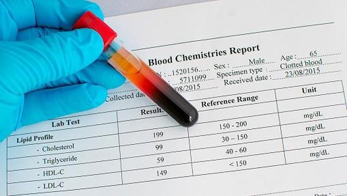 Ilustrasi cek kesehatan. Foto: Thinkstock