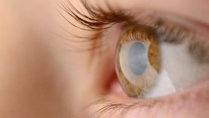 Kelopak mata yang terasa mengganjal bisa jadi gejala adanya blefaritis. (Foto: thinkstock)