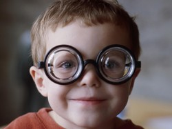 Ini Alasan Juling pada Anak Sering Dikaitkan dengan Mata Malas