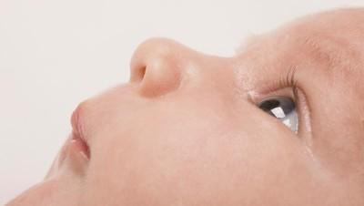 Cara Deteksi Dini Katarak pada Bayi