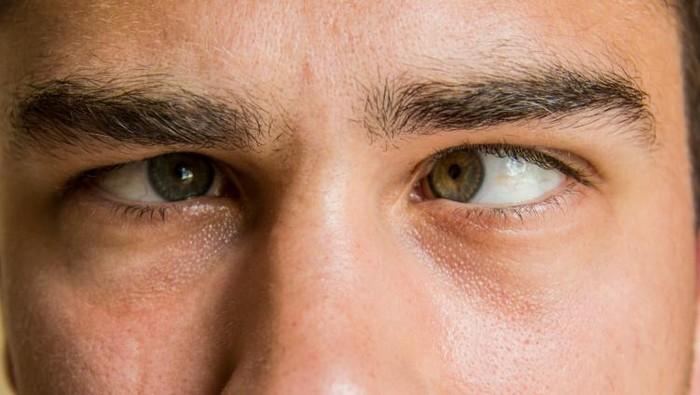 Keinginan besar di bawah malah bikin mata jadi rusak. (Foto: thinkstock)