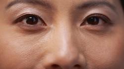 7 Cara Atasi Kantung Mata Menebal Karena Kurang Tidur Saat Puasa