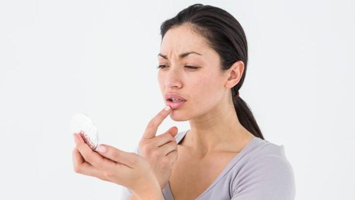 Ilustrasi bibir bengkak. Foto: thinkstock