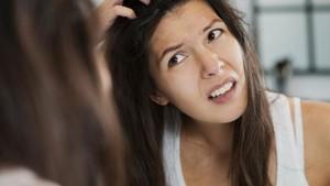 4 Kondisi Rambut yang Mencerminkan Masalah Kesehatan